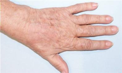 how to use uva ursi extract for skin lightening